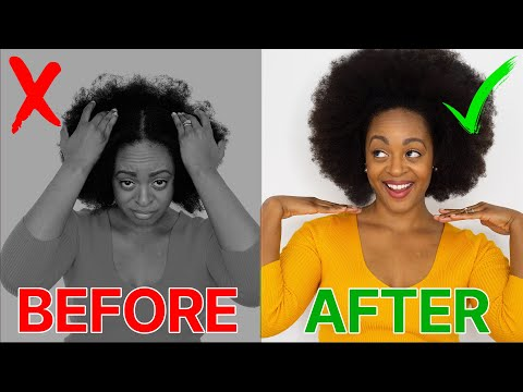 DRY, ITCHY SCALP? Cure It FAST | 4C Natural Hair