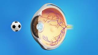 FOR Patients - Post Cataract Surgery YAG Capsulotomy explained in English