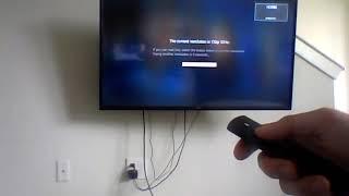 Amazon Fire TV Black Screen