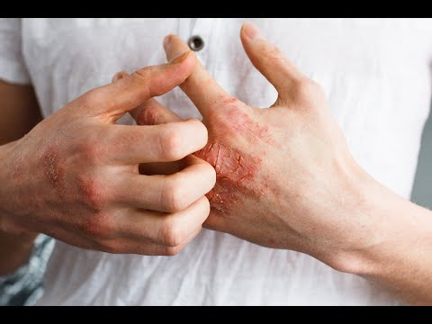 NATURAL REMEDIES TO LESSEN ECZEMA SIGNS.