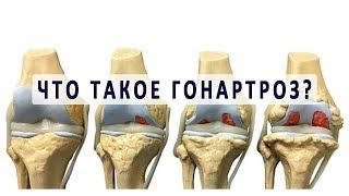 Что такое гонартроз коленного сустава?