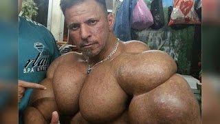 Жертва Синтола. Иракский бодибилдер Ферзадок(На руках данного иракца по имени Ферзадок Асимаи (как-то так произносится его имя) видны огромные дозы синто..., 2015-11-04T08:14:43.000Z)