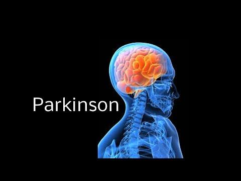 Parkinson leicht erklärt. Einfach erklärt