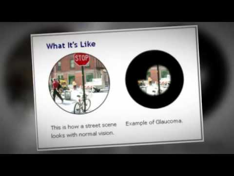 Brisbane Eye Clinic: What is Glaucoma?