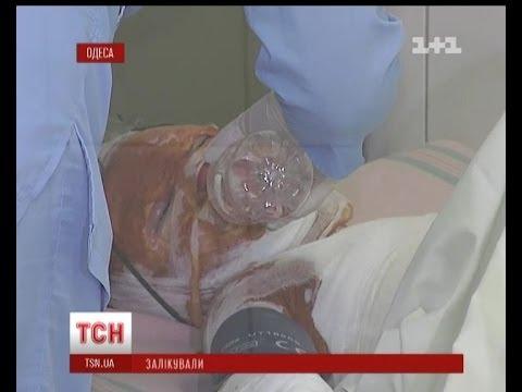 В Одесі жінка спалила доньку, аби вивести воші