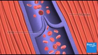 This video presents a patient's diagnosis and prognosis of deep vein thrombosis (DVT) and the molecu.