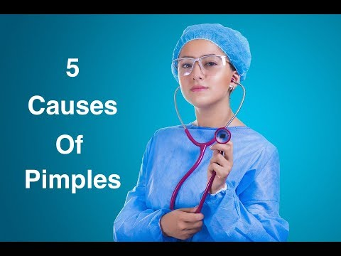 5 Causes Of Pimples That You Should Know