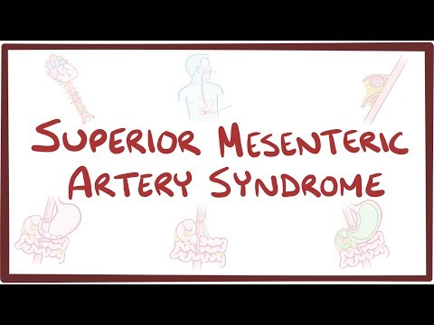 Superior Mesenteric Artery Syndrome - causes, symptoms, diagnosis, treatment, pathology