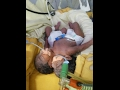 Two headed baby born in aiims died after few hours mp3