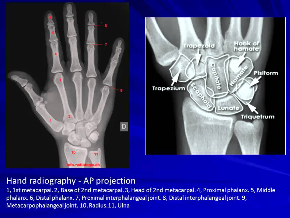 13 CT Anatomy of hand - YouTube