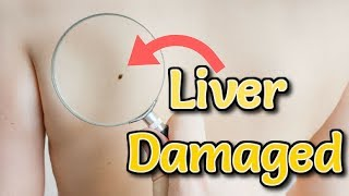 causes of liver disease