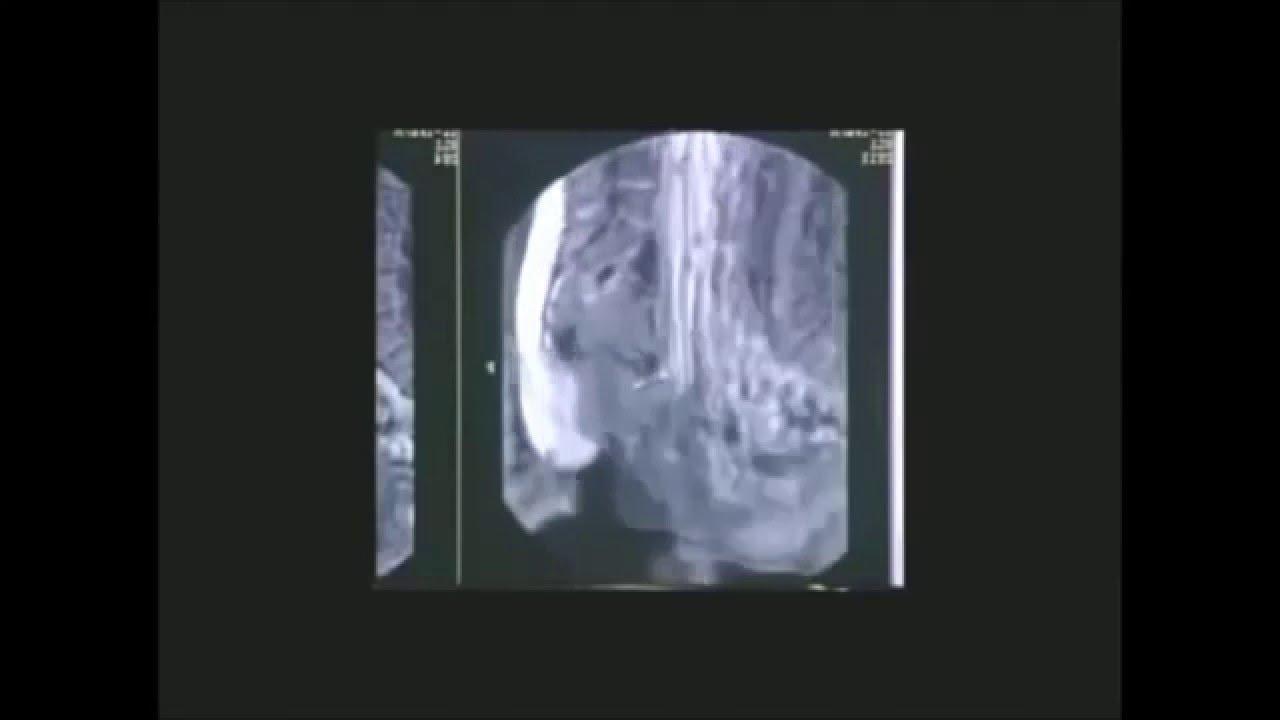 Amazing Mri Scan Photo Captures Couple Having Sex