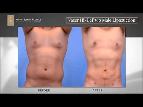Vaser Hi Def 360 Male Liposuction with Dr. Epstein