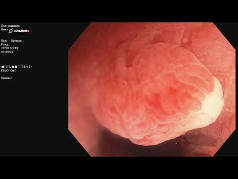 Язвенный колит, левосторонне поражение (проктосигмоидит), выраженная эндоскопическая активность.