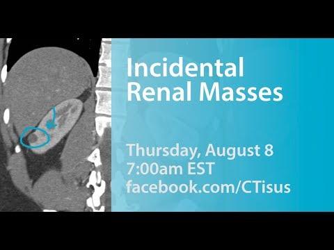 Facebook Live: Incidental Renal Masses