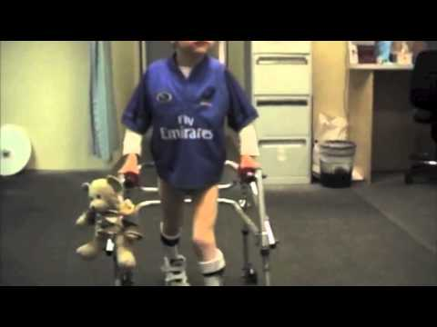 Spiral Thigh Brace for Cerebral Palsy  (spastic diplegia)