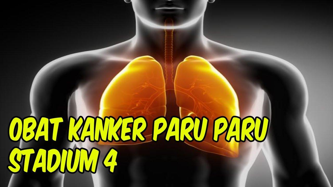 obat kanker paru paru stadium 4 - YouTube