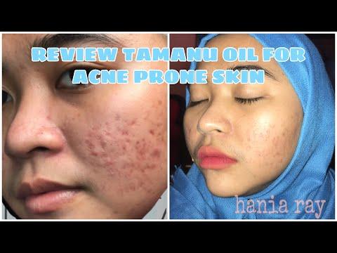 REVIEW TAMANU OIL | Acne Prone Skin Serum | Serum Dibawah 100k