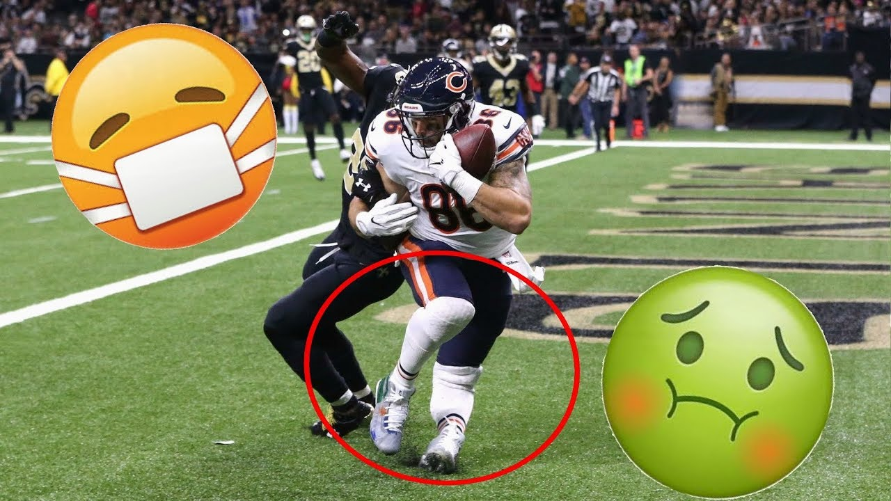 Worst Football Injuries (Part 2) (GRUESOME)