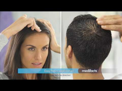 hereditary-hair-loss-and-hair-regrowth-treatment-options-|-women's-and-men's-rogaine®