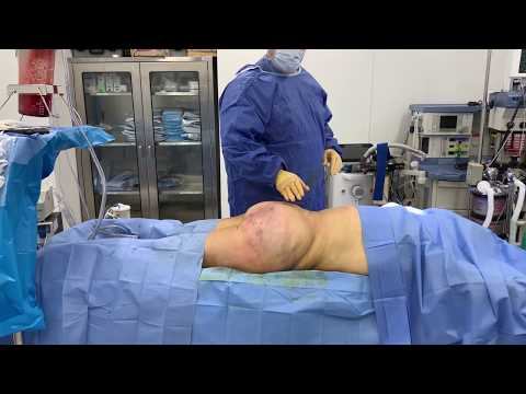 Impressive Liposuction Revision and Brazilian Buttlift Transformation with Dr. Kenneth Hughes