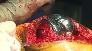 Arthrose et prothèse totale de genou - Allô Docteurs