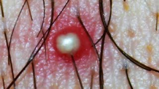Repeat youtube video Whitehead or Ingrown Hair?   What is this? Dr Popper's Pimples, Cysts, Boils