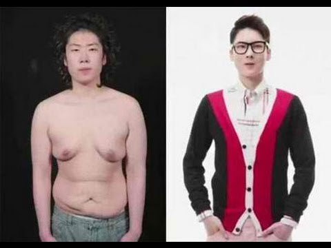Korean Guy Transforms Into a Handsome Man Through Plastic Surgery