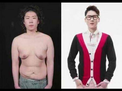 Korean Guy Transforms Into A Handsome Man Through Plastic