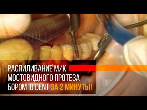 Распиливание м/к мостовидного протеза бором IQ dent за 2 минуты!