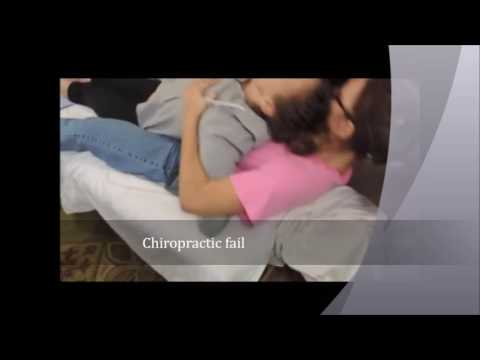 Chiropractic fail
