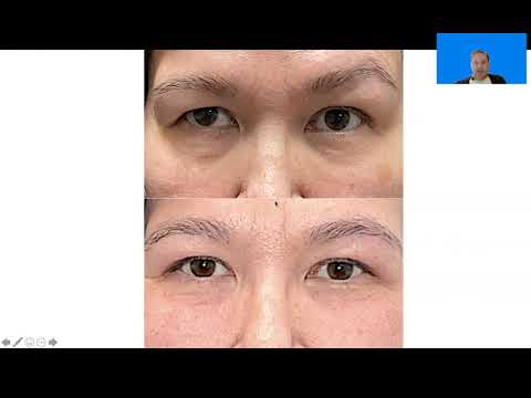 Upper Blepharoplasty result with Dr. John Burroughs at Springs Aesthetics, in Colorado Springs