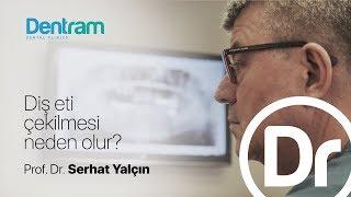 Diş Eti Çekilmesi Neden Olur? - Prof. Dr. Serhat Yalçın