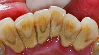 Como eliminar el sarro de tus dientes