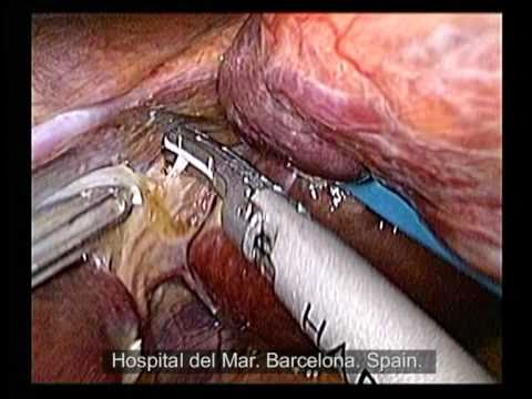 Adenoma hepático: Resección laparoscópica.