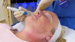 Hydratite - HydraFacial & Sublime Radio Frequency combination Treatment Thumbnail