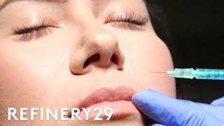 Freezing My Face For Bigger Lips | Macro Beauty | Refinery29