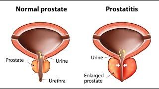 Prostatitis az ülő életből)