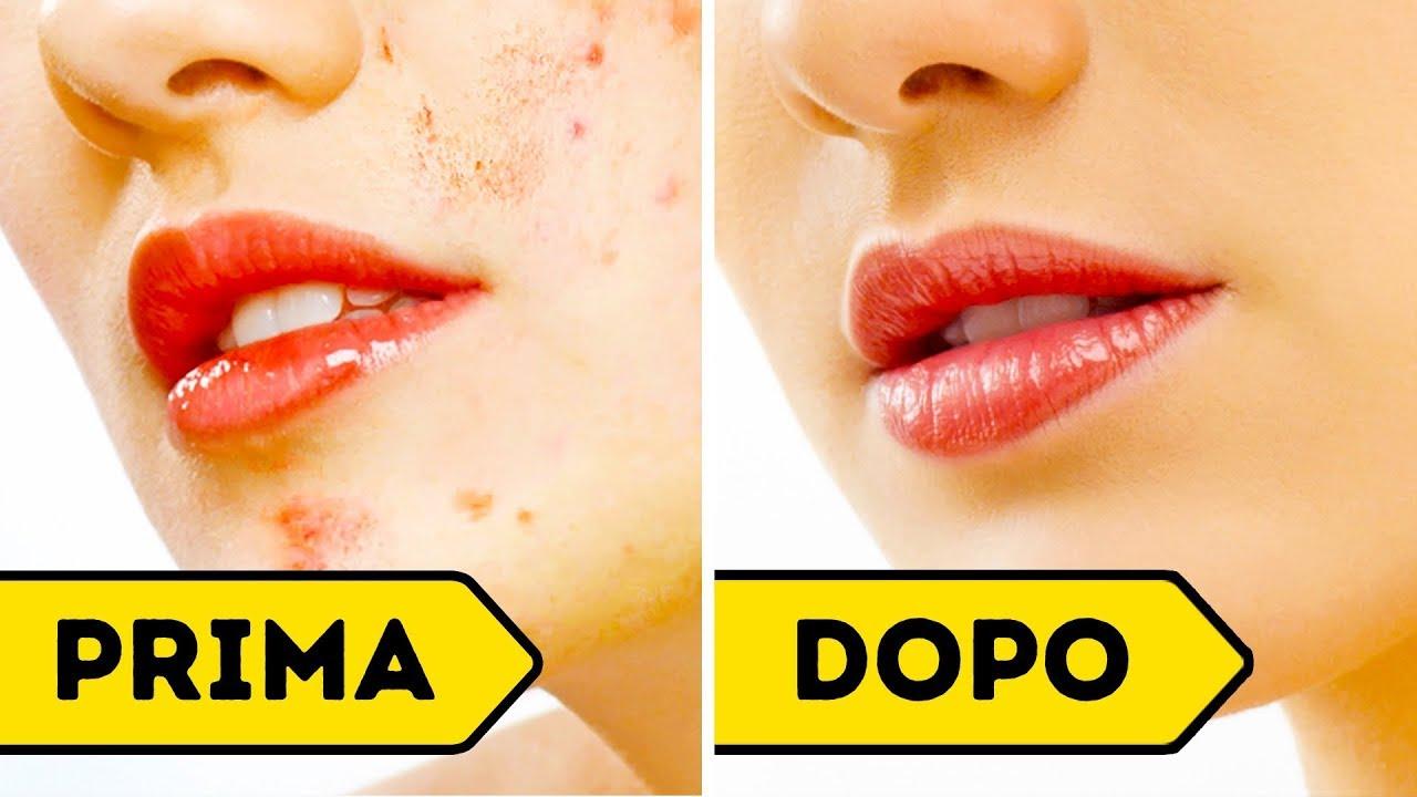 Come Eliminare le Cicatrici da Acne in Soli 3 Giorni