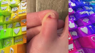 Extra Toenail? Find out How to Treat This Foot Issue!