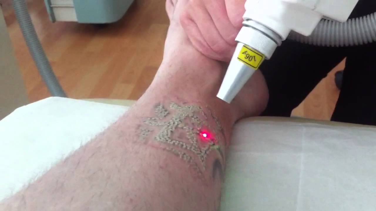 Laser Tattoo Removal - First Session - YouTube