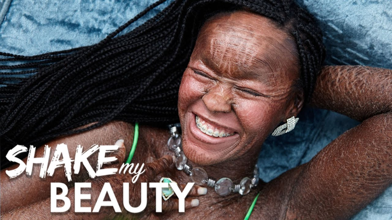 I'm Owning My Skin Condition By Modelling For Glamour | SHAKE MY BEAUTY