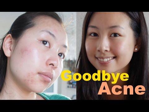 goodbye acne tipps mein leben mit akne youtube. Black Bedroom Furniture Sets. Home Design Ideas