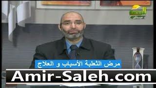 مرض الثعلبة الأسباب و العلاج | الدكتور أمير صالح