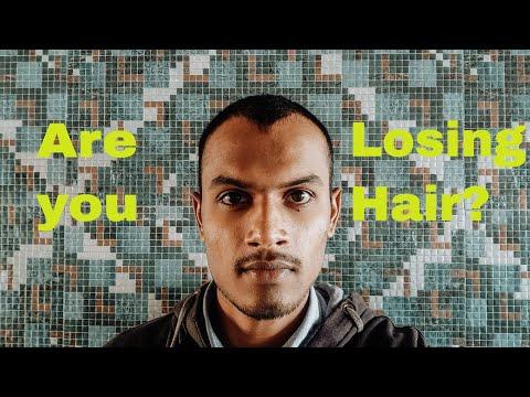 losing-hair?-|-hair-fall-|-hair-loss-|-hair-follicles-|-man-matters