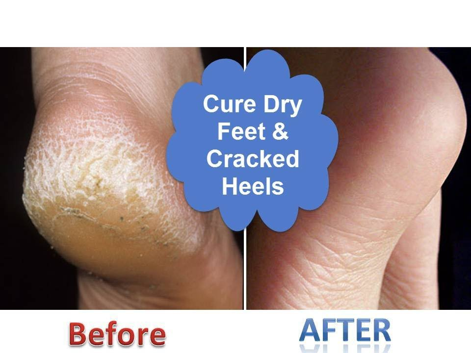 foot care cracked heels
