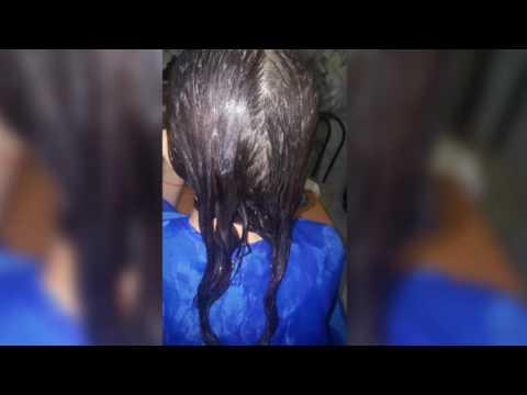 Эмульсия для сухой кожи головы Эмолиум – Отзывы
