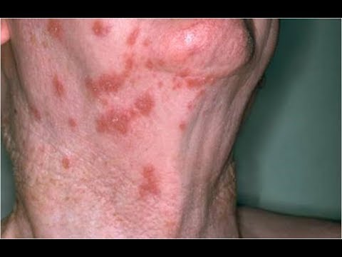 Herpes Zoster Oticus Viral Infection Treatment