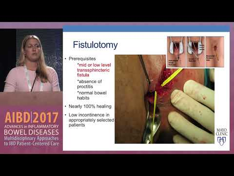 IBD Surgery: Perianal Abscess And Fistula