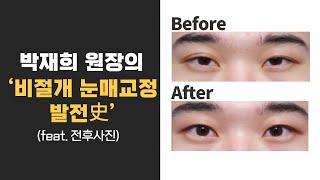 [모티브 성형외과] 박재희 원장의 '비절개 눈매교정 발…